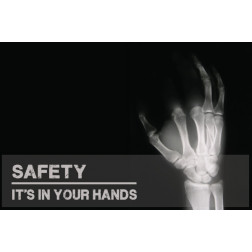 Hand Safety - X-RAY